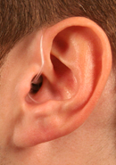 Receiver in the ear (RITE)